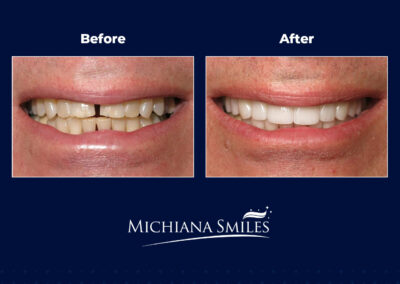 Crown and Veneers - Michiana Smiles