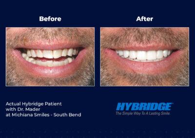 Hybridge Patient - Michiana Smiles